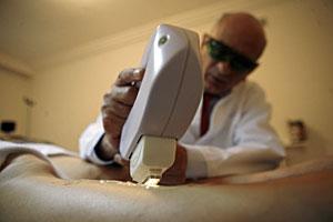 laser para estrias precios cirujias