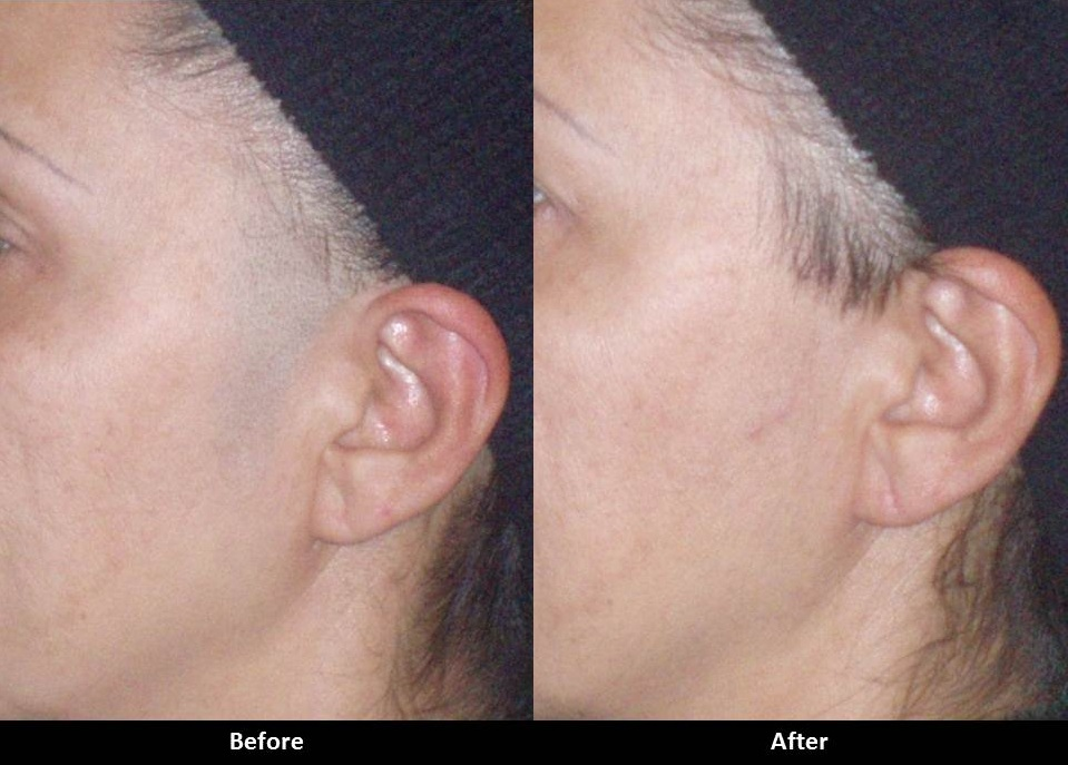 laser hair removal is a common procedure for permanent hair reduction