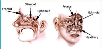 Sinus Infection Pictures: Symptoms, Causes and Treatment