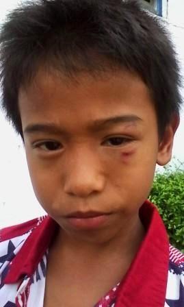 Trauma, Anak Korban Jurus Sepatu Melayang Hari Ini Tidak Masuk Sekolah