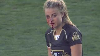 Rugby 'war goddess' Georgia Page plays on despite broken nose