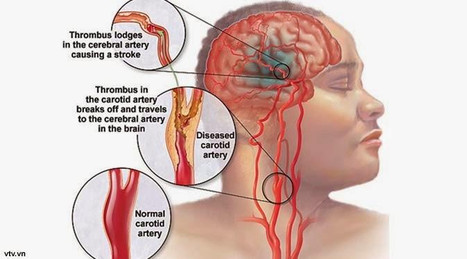 obat penyumbatan pembuluh darah otak