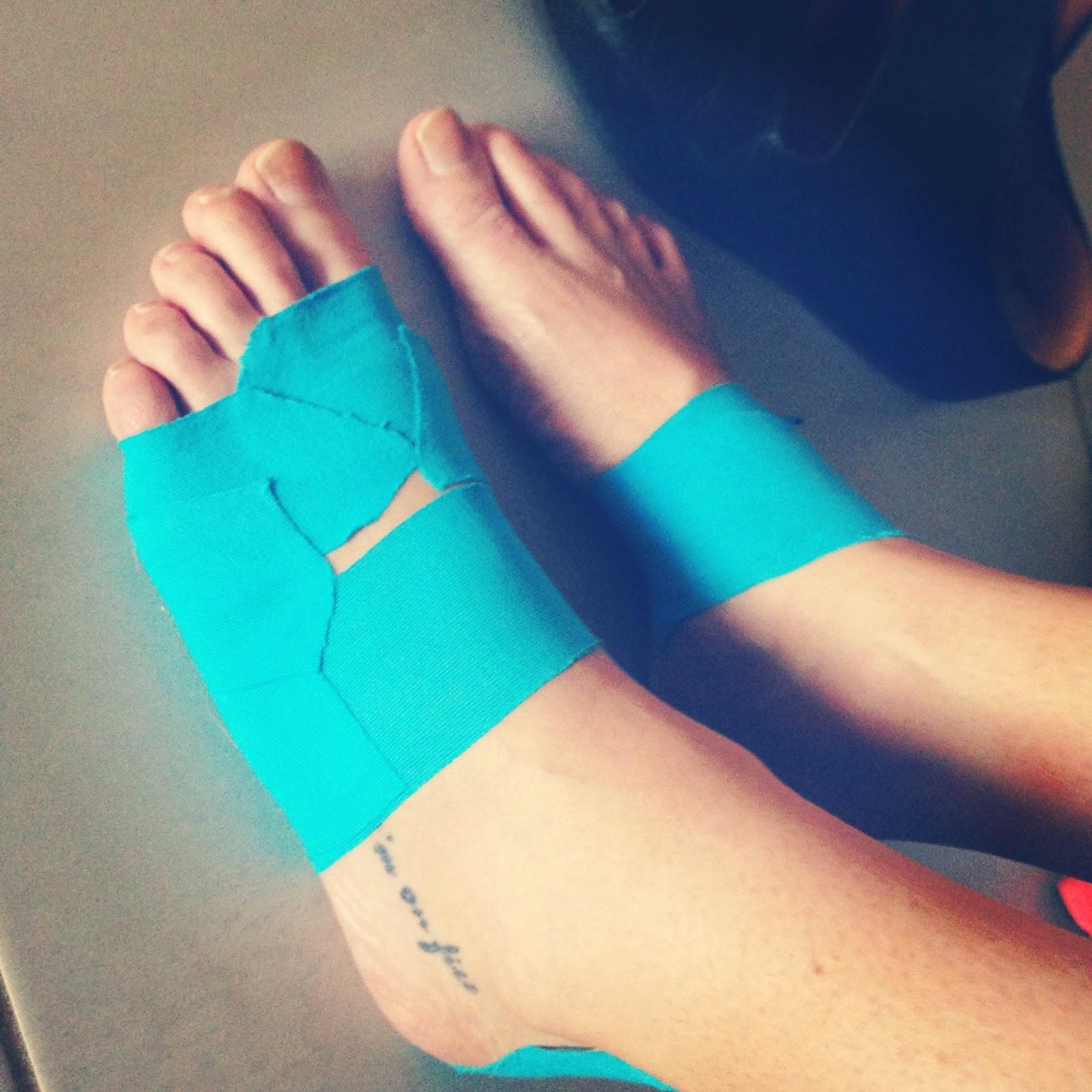 running injury, tape, KT tape, Rocktape, running