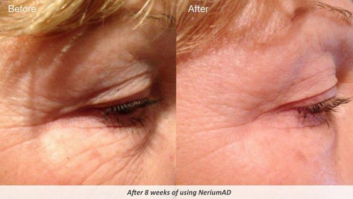 Nerium AD Before and After Eyes