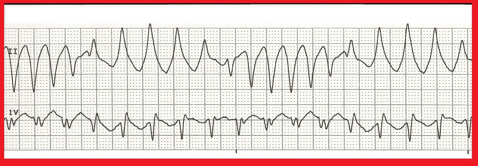Float Nurse: EKG Rhythm Strip Quiz 148 Ventricular Tachycardia Rhythm Strip