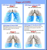 COPD Stages
