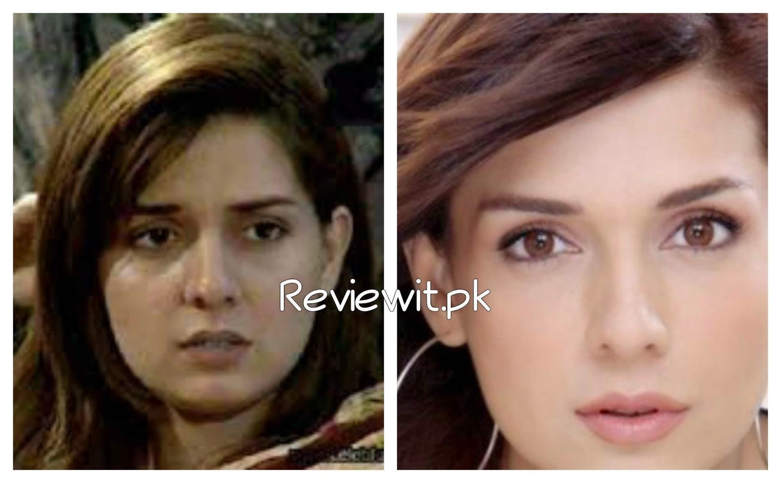 Stani Celebrity Mahnoor Baloch Before After Cosmetic Surgery