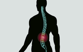 Estabilização Segmentar nas Dores de Coluna