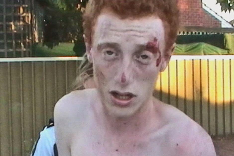 drugged-facial