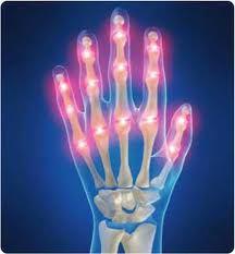 Permalink to Broccoli Beneficial To Prevent Rheumatoid Arthritis