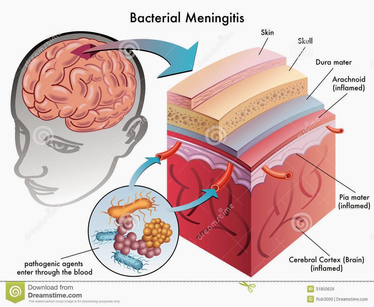 Image result for Meningitis