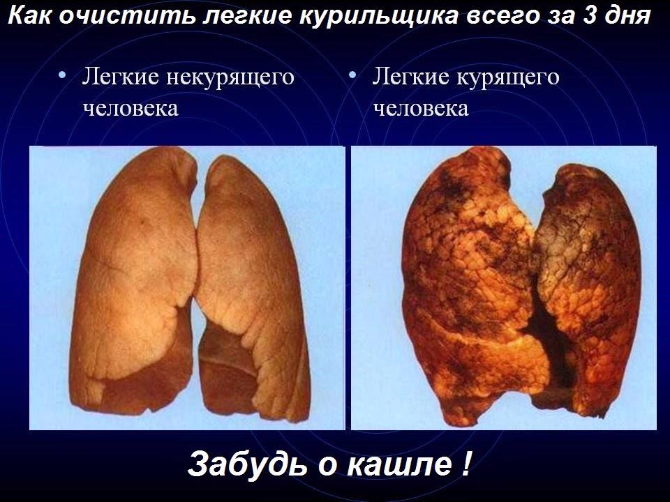 легкие после курения