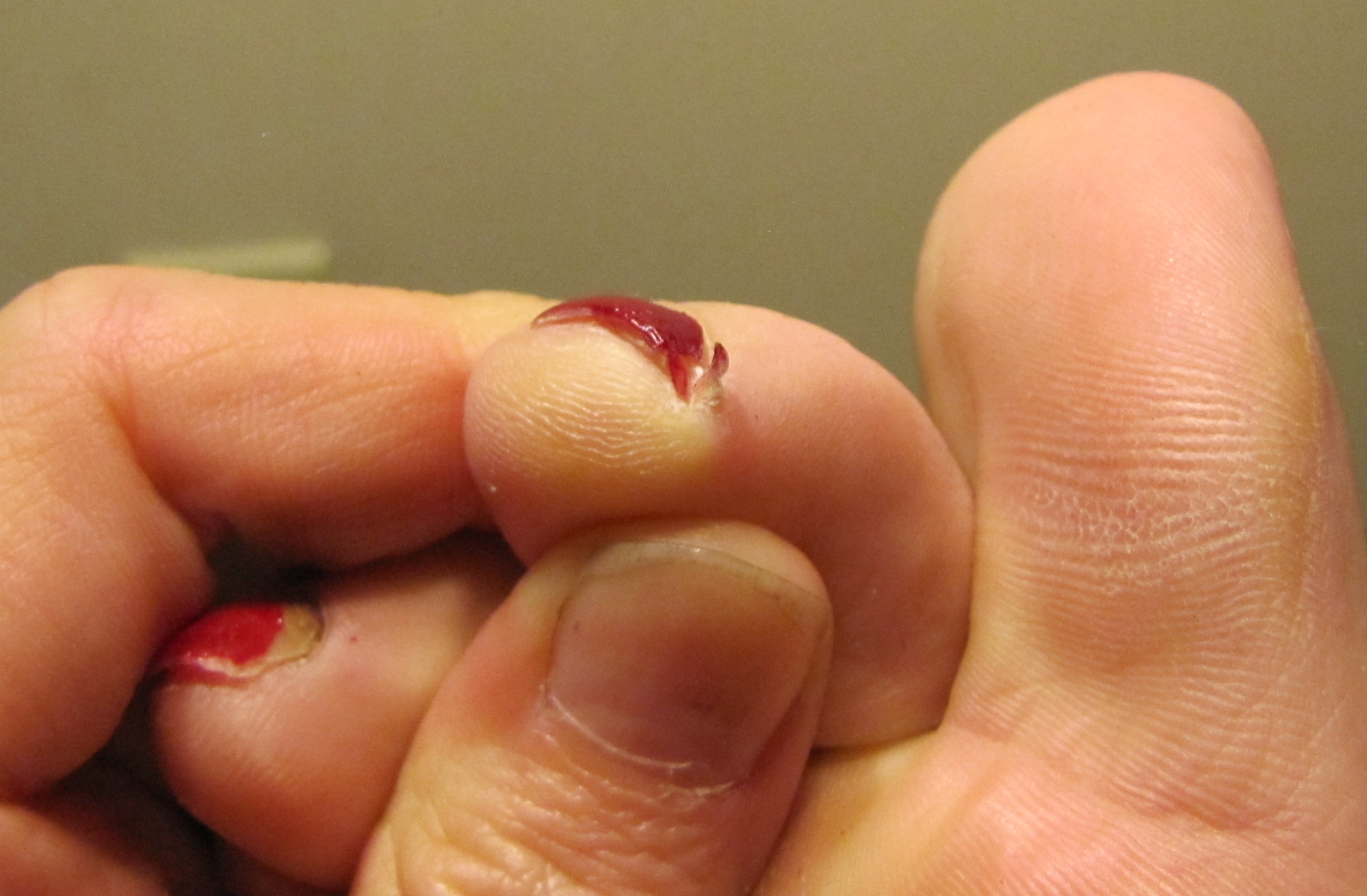 A Hangnail But It Is In Fact Sliver Of Nail That Has Broken Off And Been Ripped Upwards The Red Underneath Not Polish Little Section