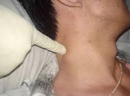 Gejala Awal Penyakit TBC Kelenjar