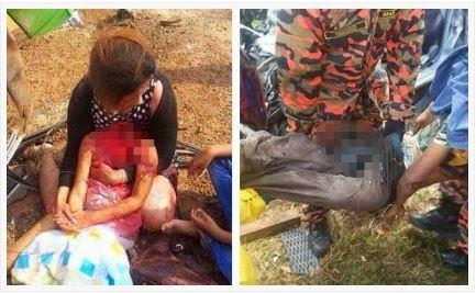 Penjelasan Bomba Kanak kanak Putus Kepala Dalam Kemalangan Di Gurun Kedah