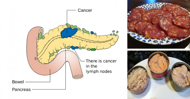 14 Cancer-Causing Foods You Should Never Put In Your Mouth