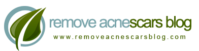 remove acne scars blog | about get rid of acne scars