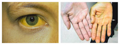 Obat Herbal Hepatitis A