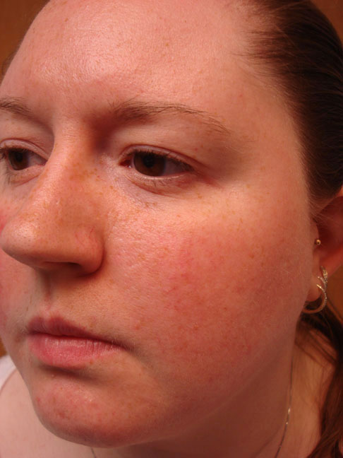 exertion facial erythema