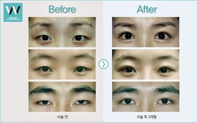 Foto sebelum dan sesudah operasi kelopak mata ganda tanpa sayatan di Wonjin