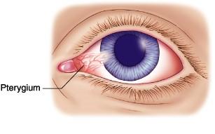 lessens chances of getting eye problem