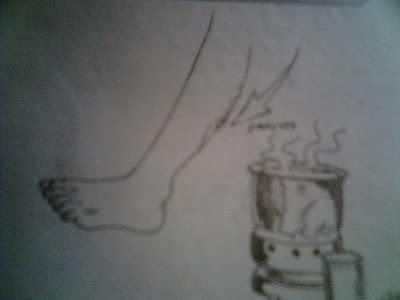gambar kaki Varises