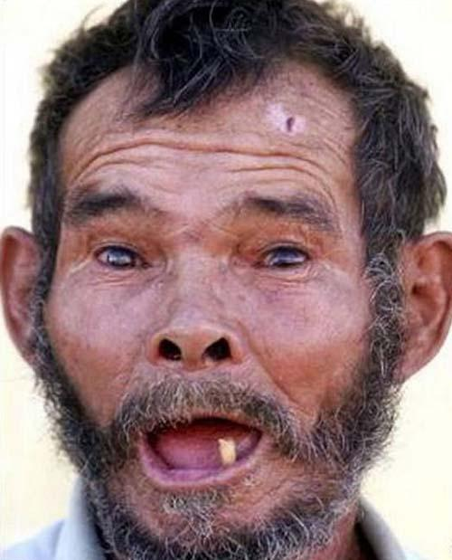 Ugliest Person In The World 2013 The Ugliest Man...