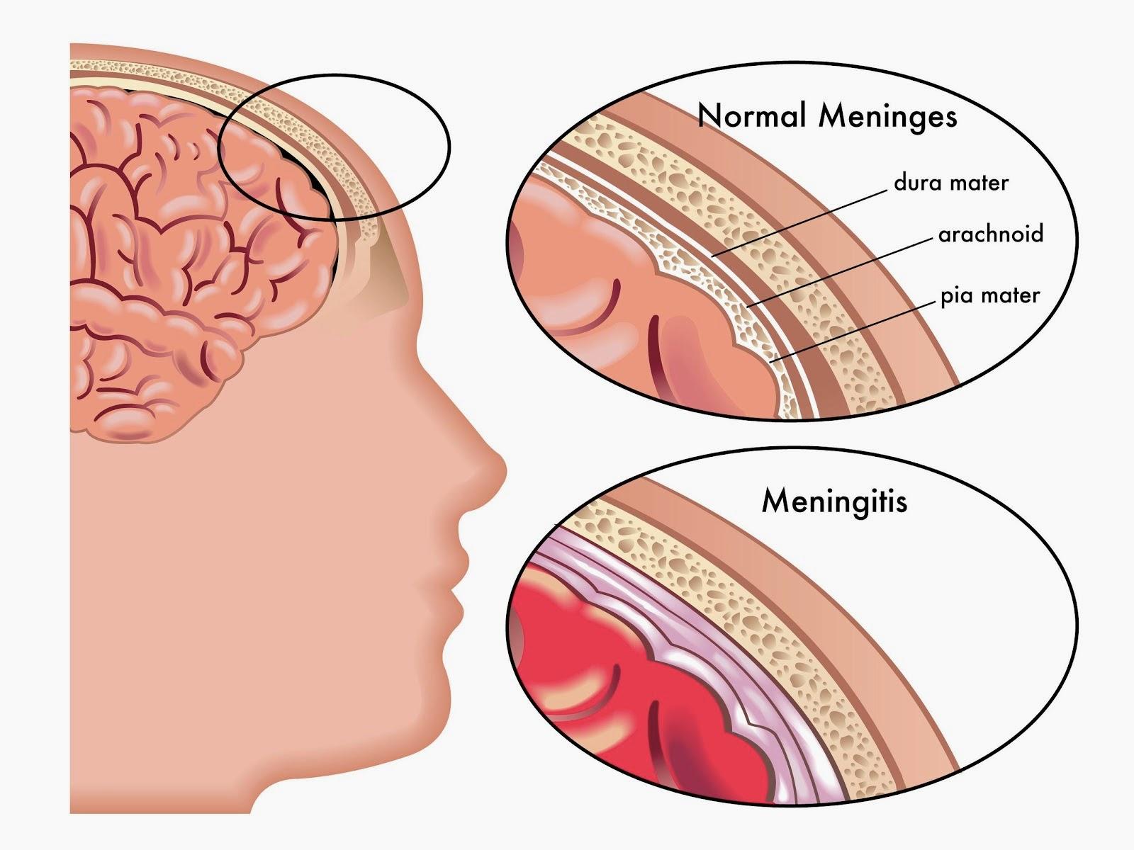 gambar meningitis,pengertian dan penyebab meningitis