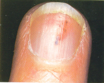 how to get splinter out from under nail