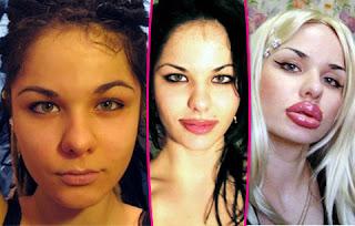 Kristina Rei, Wanita  Bibir Tertebal di Dunia