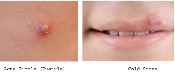 Pus from herpes is generally clear or yellowish in color, and it is typically very contagious 2