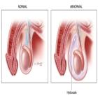 Cancer de Testiculo, alguns esclarecimentos adicionais