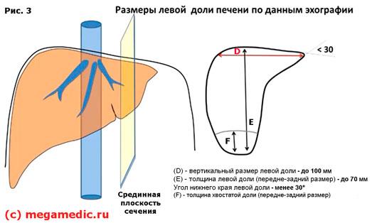 Размер левой доли печени