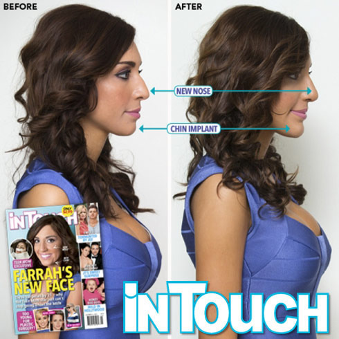 Farrah Abraham Before and After Surgery