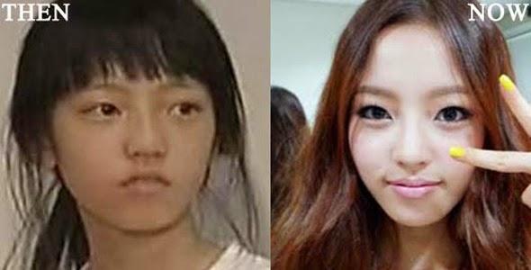 10 Gambar Mengejutkan 10 Artis Wanita Korea Buat Pembedahan Plastik