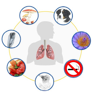 Penyakit Asma, obat herbal asma, obat asma alami, obat asma tradisional