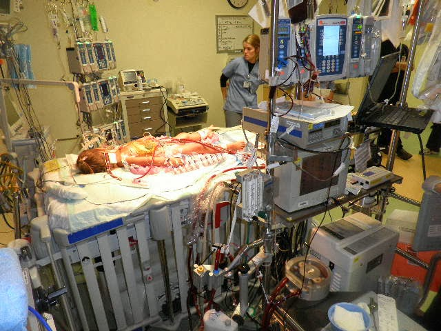 ecmo machine side effects
