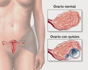 Quiste de Ovario