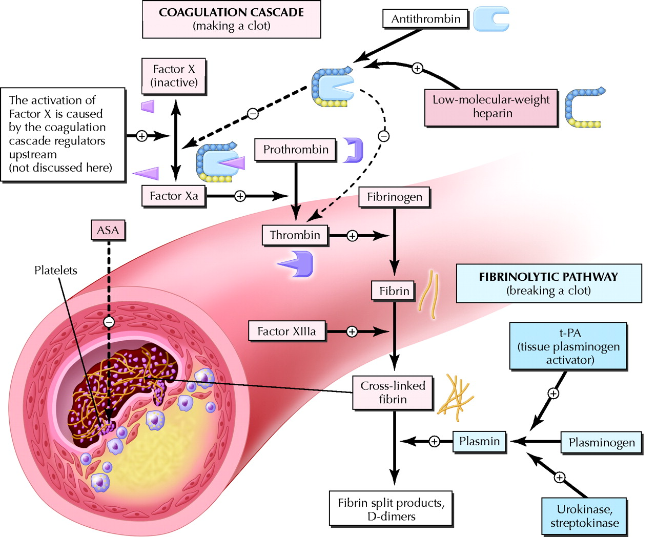 Hemorrhagic Stroke Treatment: Ischemic Stroke Pathophysiology ...