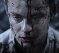 Лицо Вампира после избиения