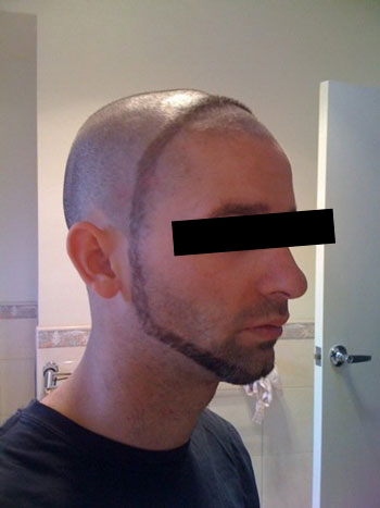 Neckbeard Vs Beard