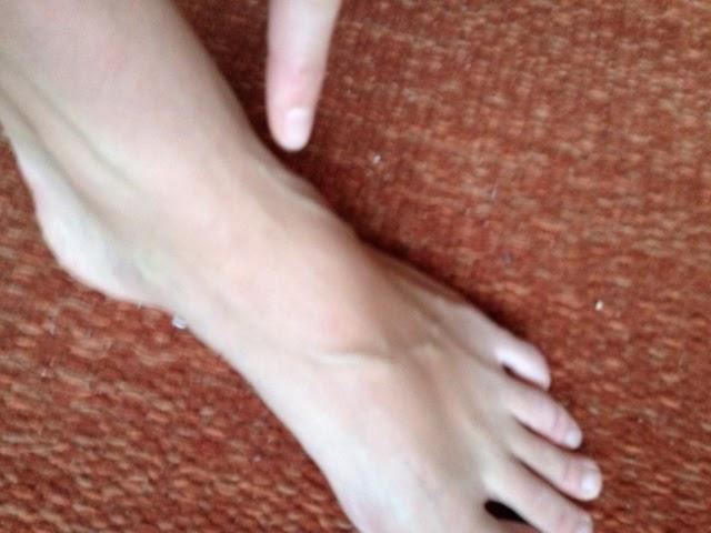 smerter oppå foten