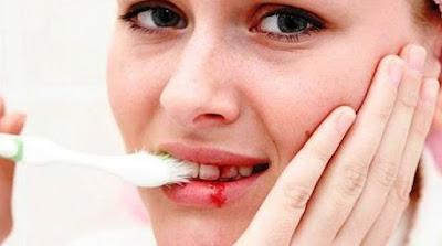 5 Cara Ampuh Sembuhkan Gusi Berdarah