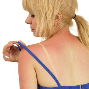 10 Natural Remedies for Sunburns