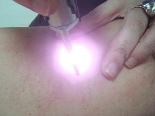 Fototerapia