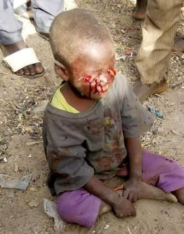 OMG! Graphic photo Of a Little boy's eyes plucked out.