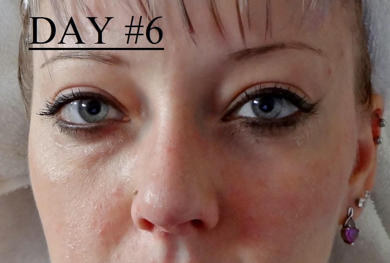 Trichloroacetic Acid tca peel burn wrinkles dry skin painful flaky moisturize