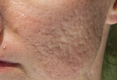 Acne scars from large pores and how to shrink them.