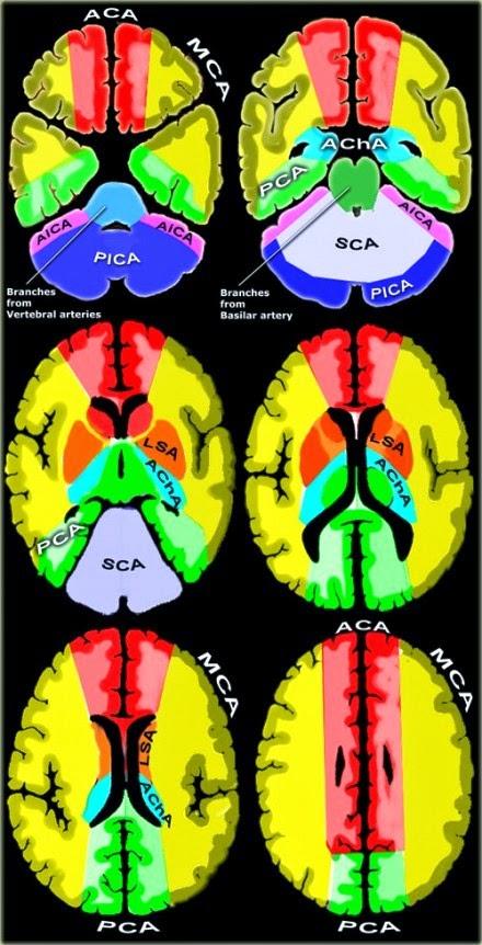 Territorios vasculares cerebrales