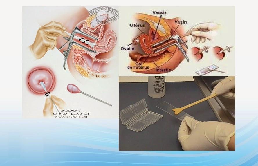 Kepentingan ujian Pap Smear